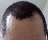 白髪染め トリートメント ルプルプ