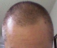 白髪染め ルプルプ